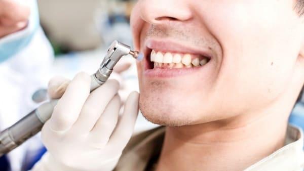 Причины появления налета на зубах – мнение стоматолога