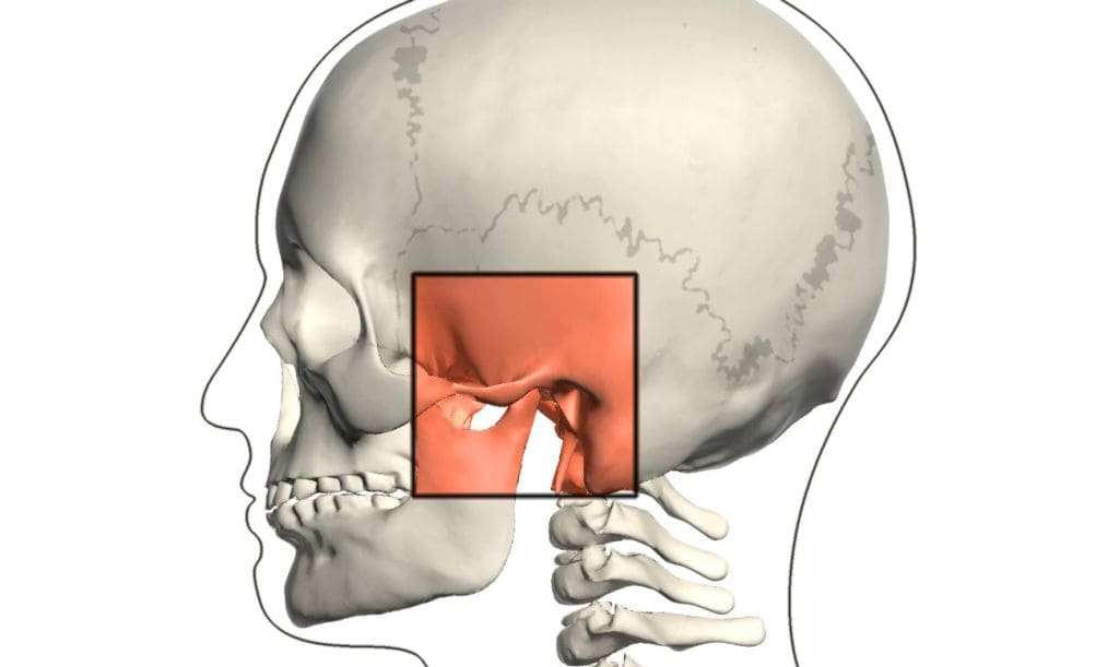 Артрит скронево-нижньощелепного суглоба