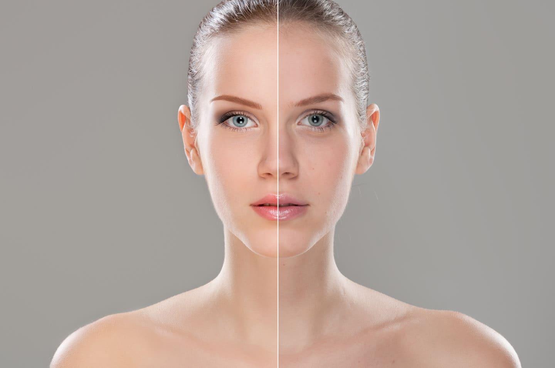 Біоревіталізація - зволоження шкіри зсередини