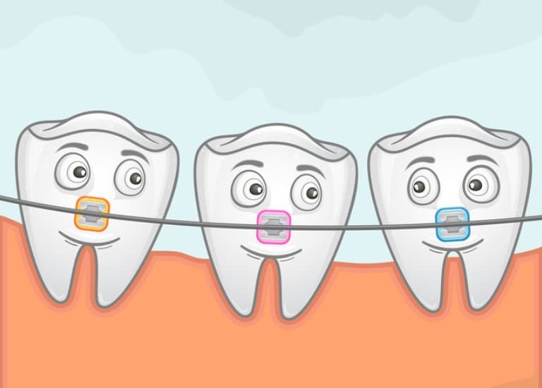Что такое ортодонтия и как исправить прикус