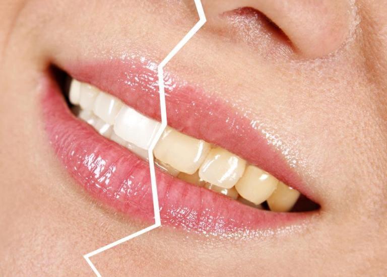 Как курение вредит вашим зубам