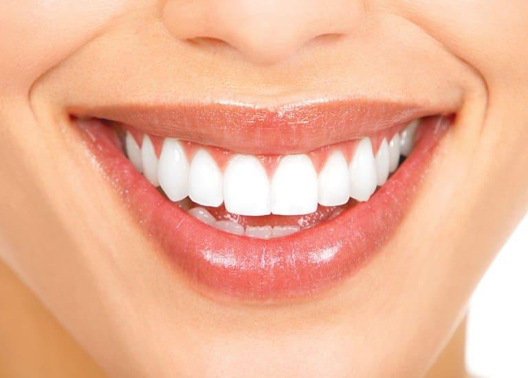 Як відбувається нарощування зубів в стоматологічній клініці