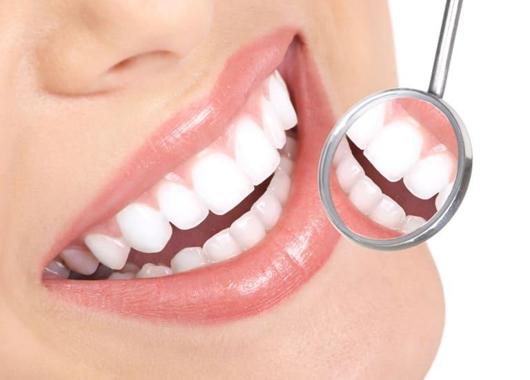 Що таке незнімне протезування зубів