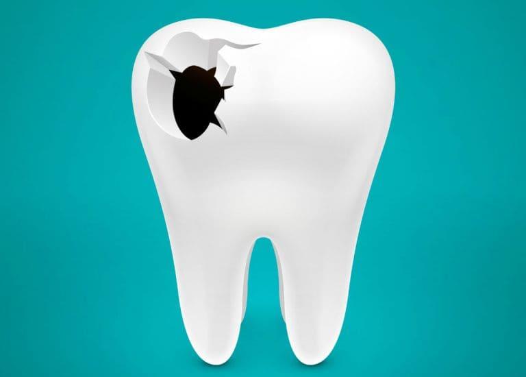 Перфорація зуба: симптоми і лікування