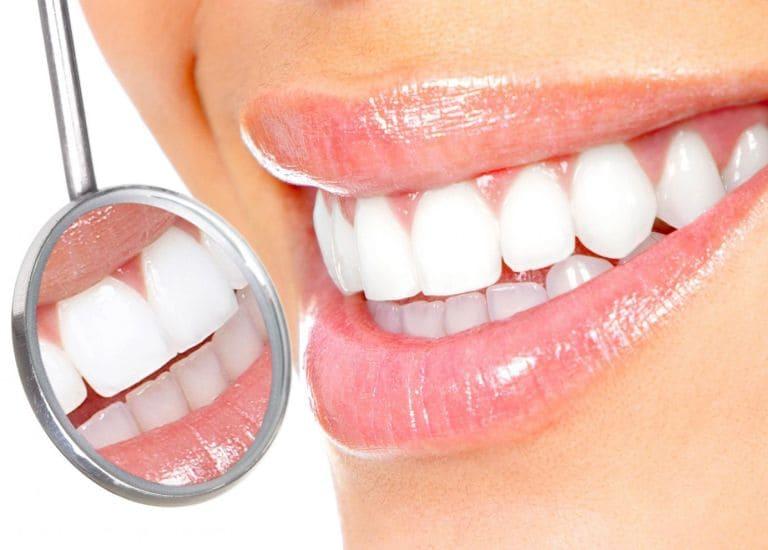 Способы профессиональной чистки зубов