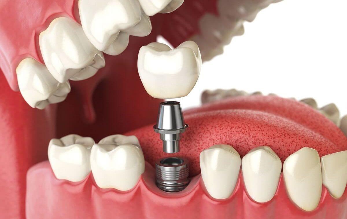 У яких випадках потрібно протезування зубів