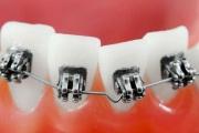 Скупченість зубів