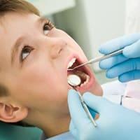 Пломбирование молочных зубов (стеклополимерный цемент)
