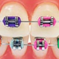 Дитяча ортодонтія