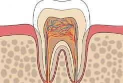 Причины воспаления и способы лечения каналов зуба