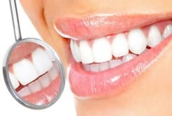 Способи професійного чищення зубів