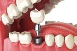 В каких случаях нужно протезирование зубов