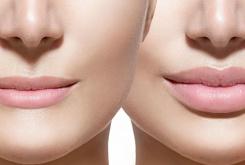 Збільшення губ гіалуронової кислотою