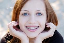 Як лікувати вестибулярное розташування зубів