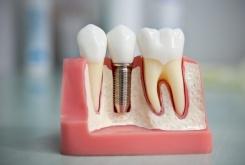 Види незнімного протезування зубів