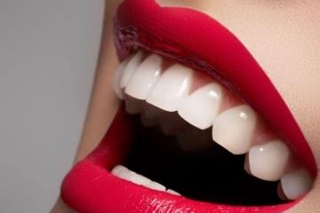 Фотоотбеливание зубов Magic Smile