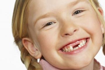 У ребенка выпал молочный зуб?