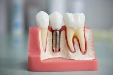Виды несъемного протезирования зубов